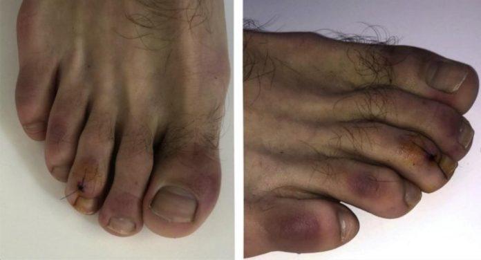 coronavirus dita piedi