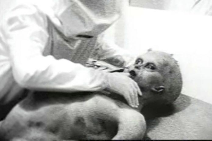 Autopsia aliena