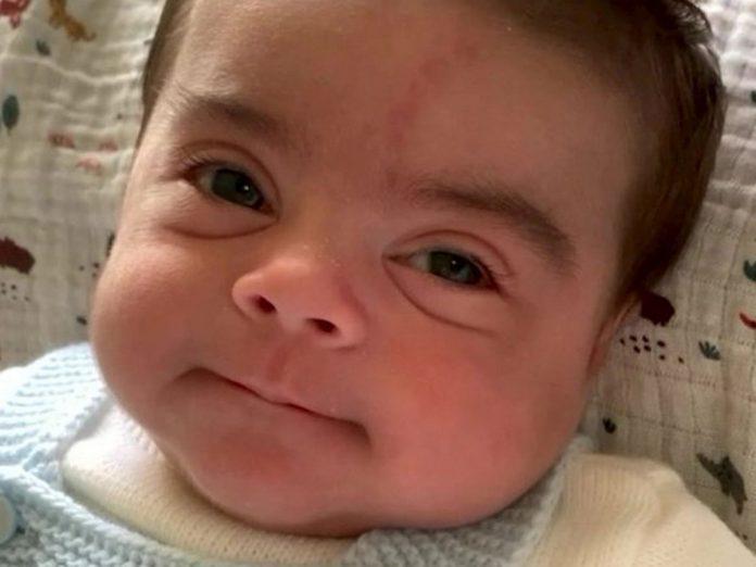 bambino prematuro capelluto
