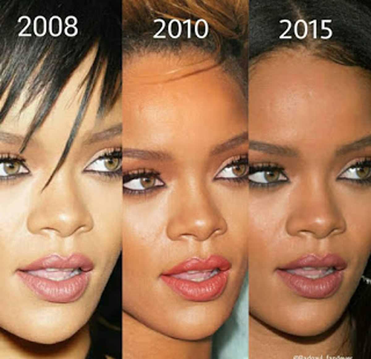 Rihanna-si-è-rifatta?