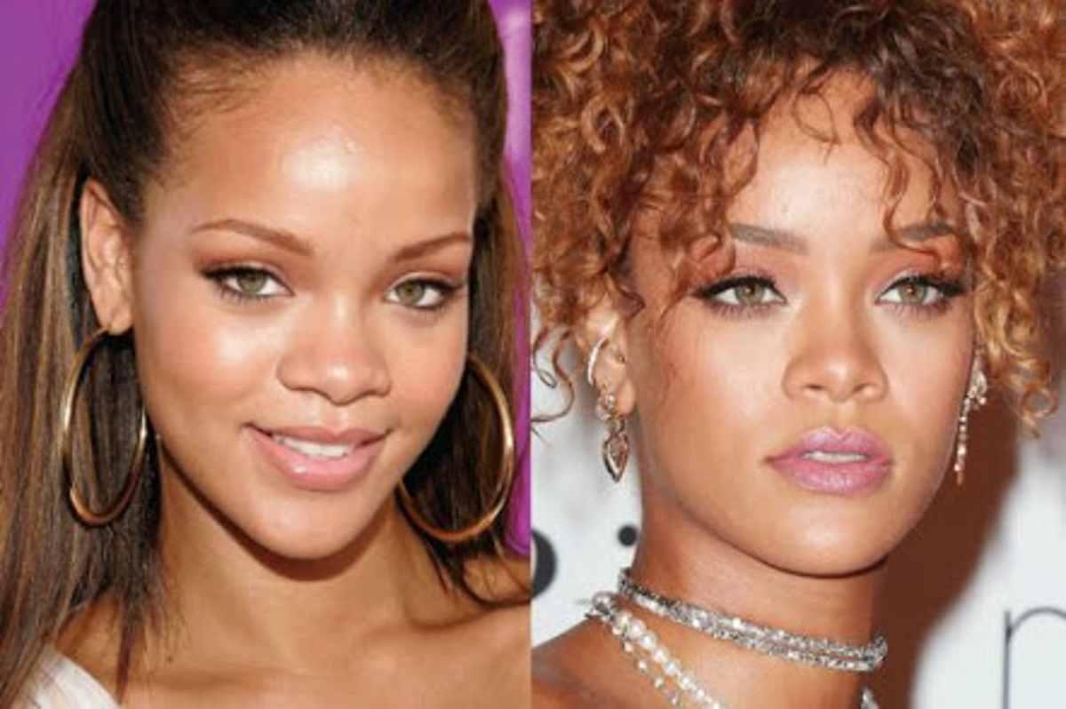 Rihanna-chirurgia-estetica