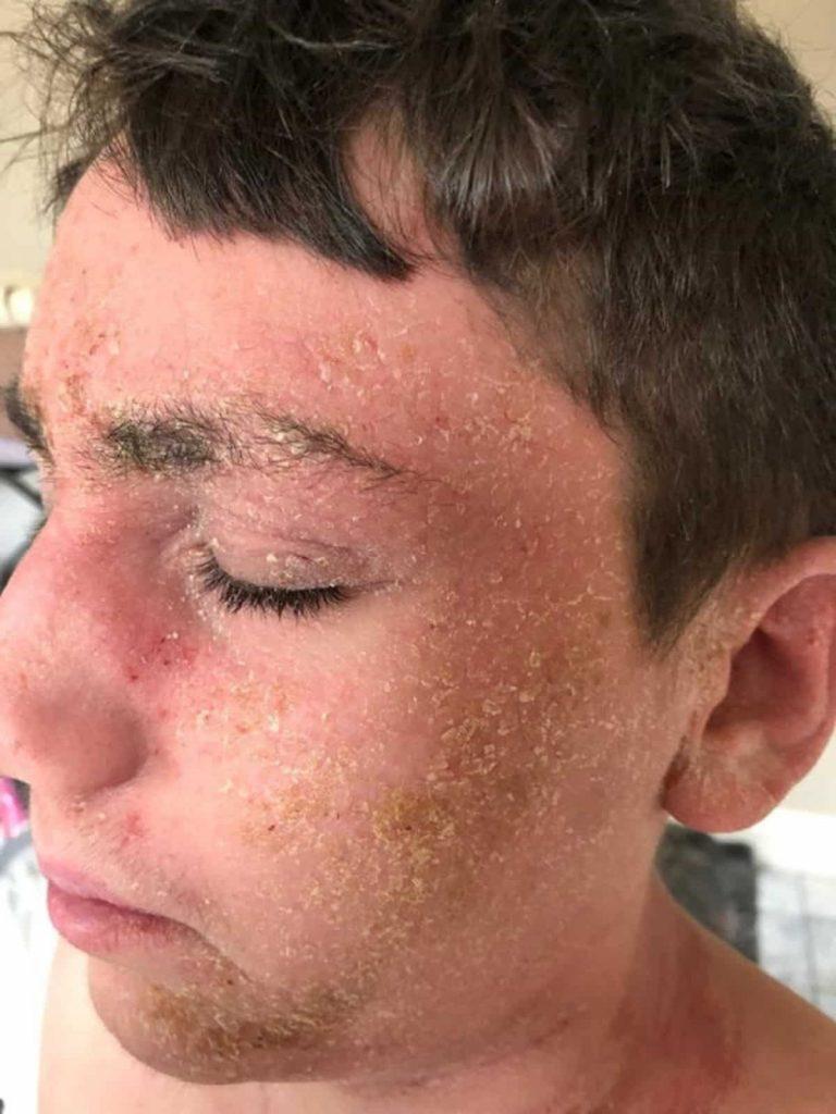 Bryan eczema