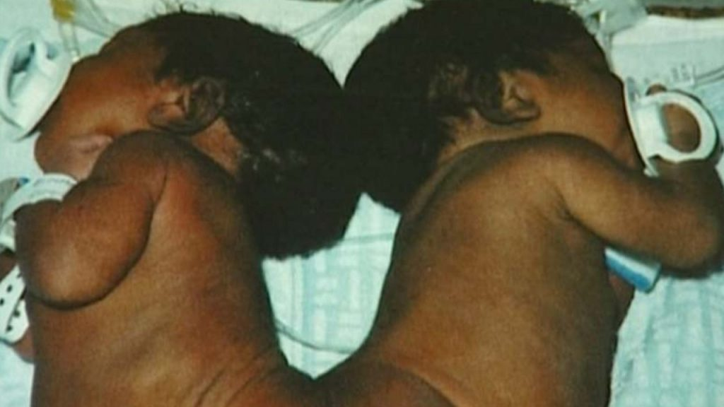 gemelle siamesi